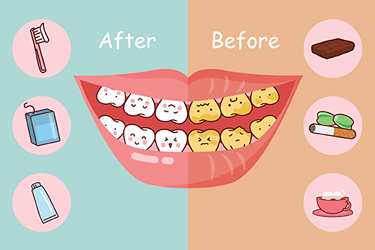 Cosmetic Dentistry Aurora - Before after smile cartoon