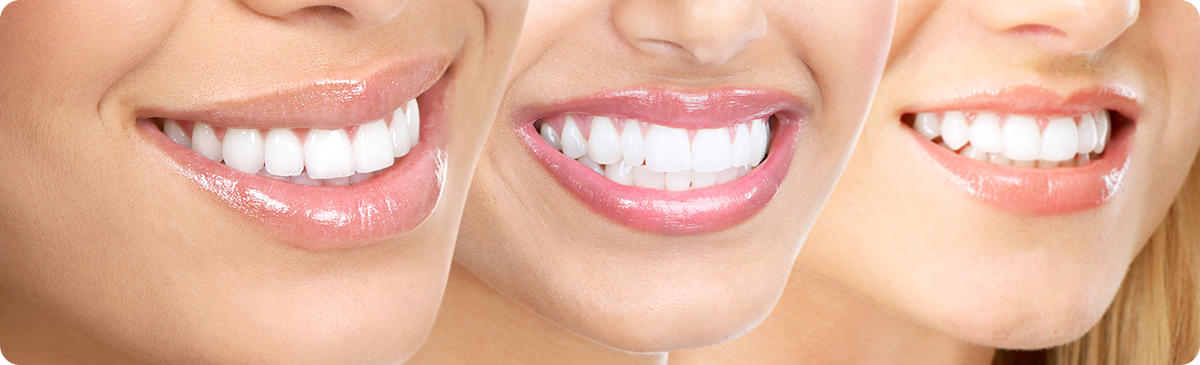 Cosmetic Dentistry Aurora - Smile with Teeth Whitening