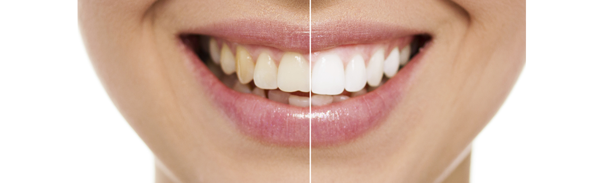 Cosmetic Dentistry Aurora - Women Teeth-Whitening before after