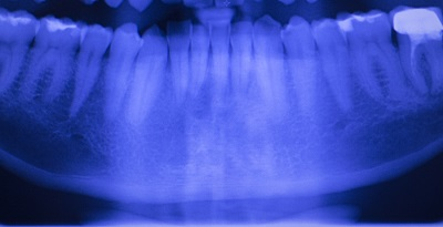 aurora composite fillings