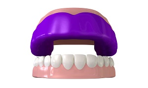 '.$pk.' - Illustration of purple mouthguard fitted on mouth