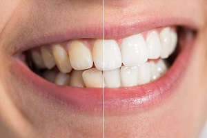 teeth whitening aurora